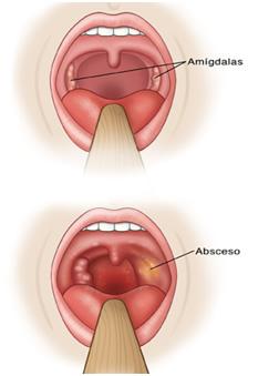 Absceso amigdalar1